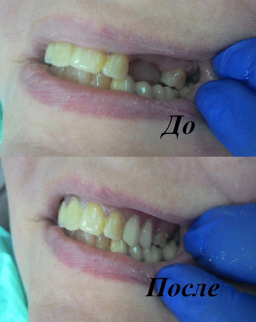 Съемное протезирование (4)